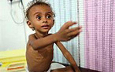 国連、戦争で破壊されたイエメンで飢饉を警告